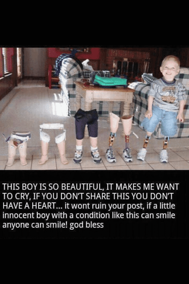 kid with no legs smiling
